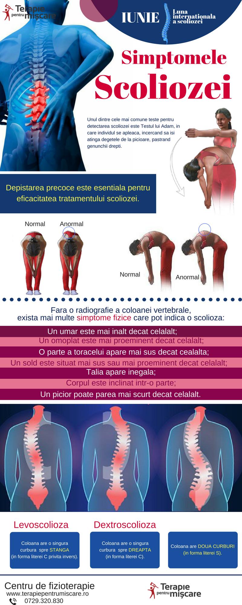 Infografic - scolioza - Terapie pentru Miscare